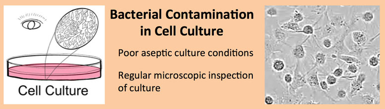 Bacterial Contamination in Cell Culture